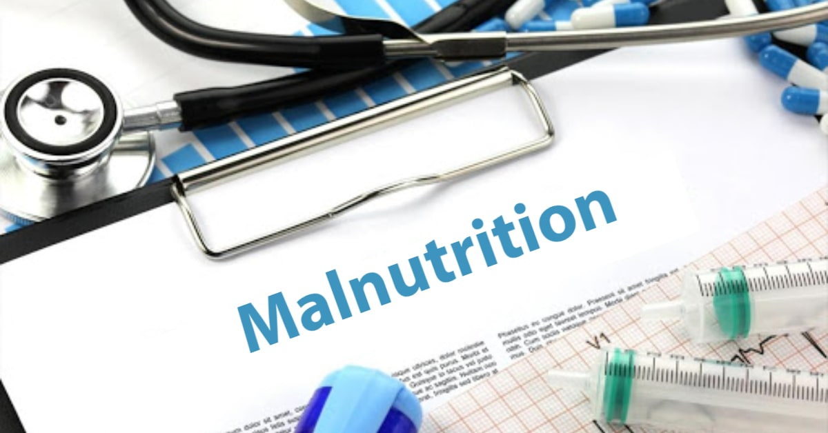 Malnutrition Causes, Types, Symptoms, Diseases